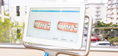 歯科用CT・iTero(アイテロ)などの機器が充実