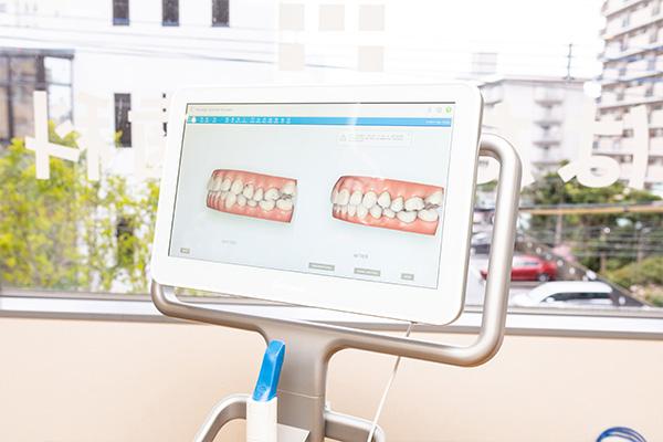 4.歯型取り(iTero)